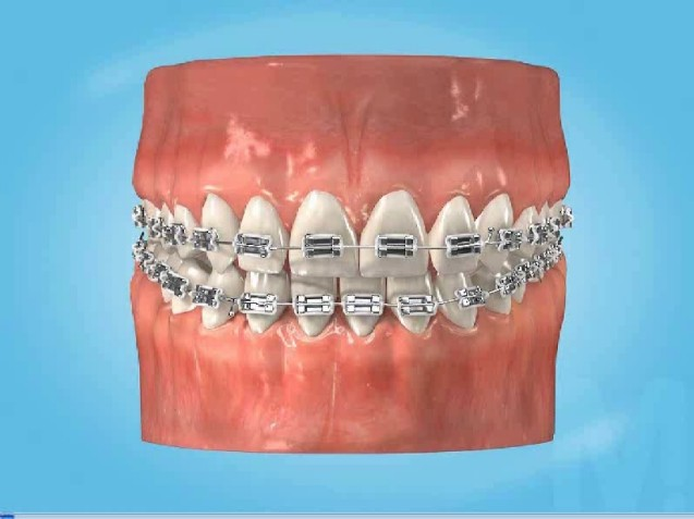 Have you got braces? Have you broken a bracket?