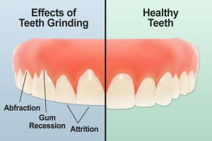 Oral Hygiene Tip of the Month – July