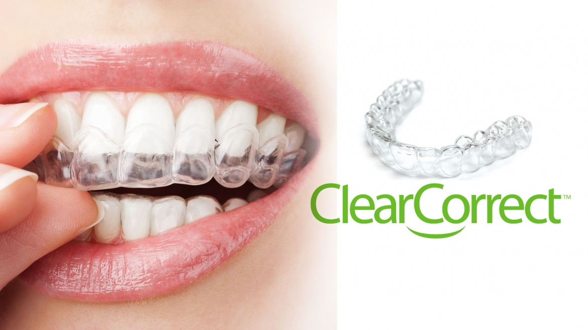 clearcorrect-1170x658