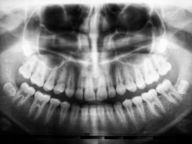 3 Benefits of Dental X-Rays