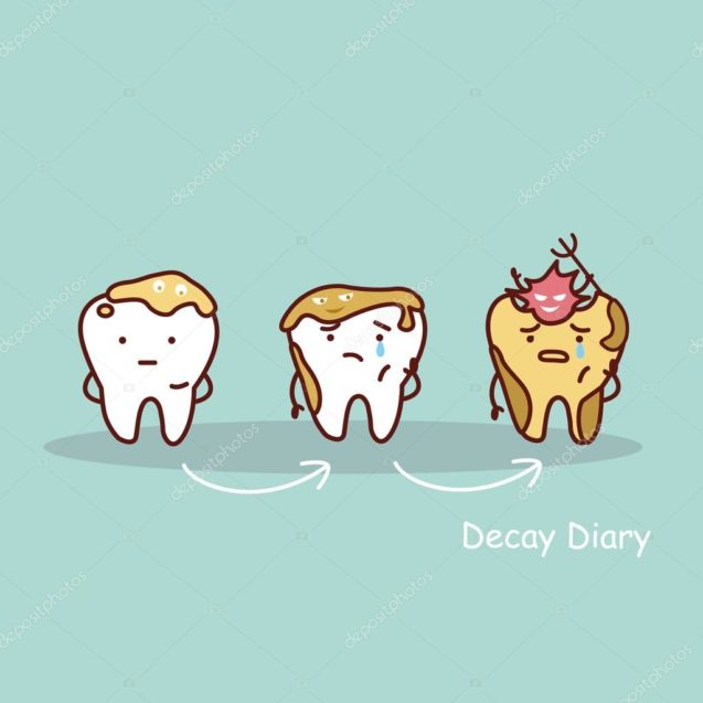 Dental Decay: How to Prevent it?