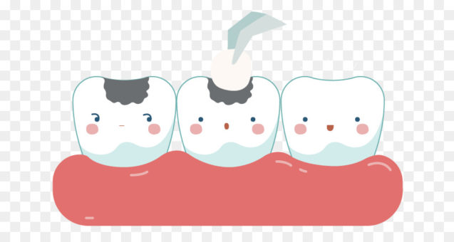 Dental Fillings: Why fillings are done and the process